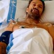 "Jarabe de Palo, Pau Donés sconfigge tumore: ""Sono pulito"" 03"