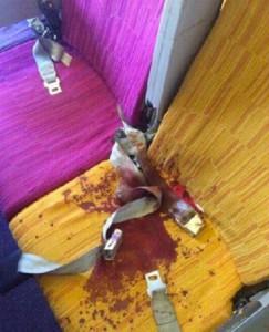 Turbolenze in volo: passeggeri feriti, sangue su sedili FOTO