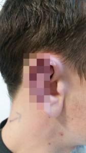 Cannibale stacca orecchio a morsi a un giovane studente
