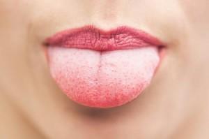 Lingua, se è bianca o spaccata può indicare malattie