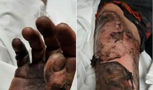 Guarda la versione ingrandita di Sigaretta elettronica esplode batteria, ferito e ustionato