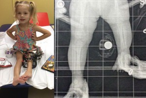 Spezza la gamba della figlia ogni giorno. Ecco perché FOTO
