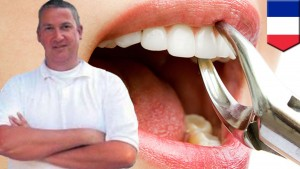 Jacobus Van Nierop, dentista degli orrori, condannato 8 anni