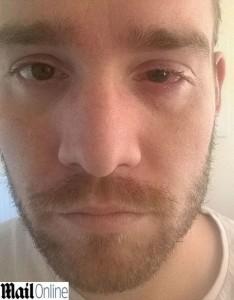 Lenti a contatto per 14 ore al giorno: ora rischia la vista