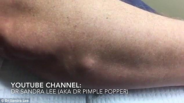 VIDEO YOUTUBE Tumore benigno asportato da braccio03