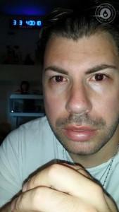 Valentino Talluto untore Hiv: dal 2006 sapeva d'esser malato