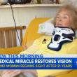Cieca da 20 anni, riacquista vista dopo caduta3