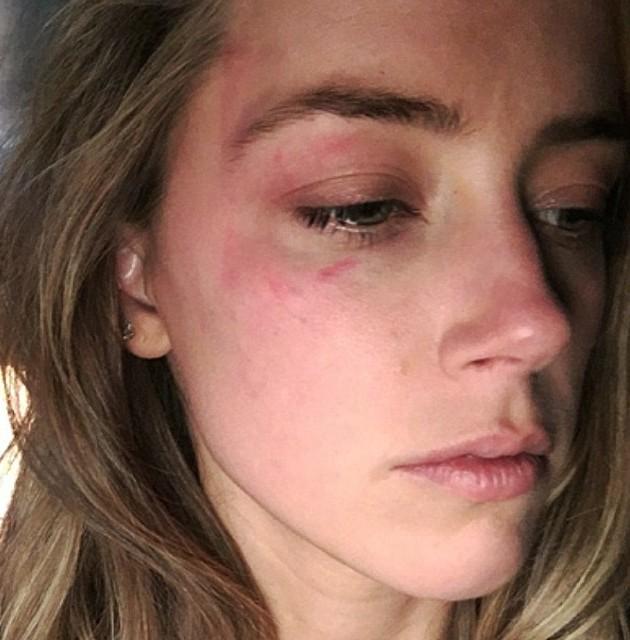 "Amber Heard accusa Johnny Depp: ""Mi ha picchiata..."""