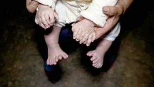 Bimbo nasce con 31 dita tra mani e piedi FOTO
