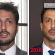 Fabrizio Corona, zigomi e denti rifatti. Ironia sul web FOTO