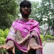 """Bangladesh, la """"bambina lupo"""": 12 anni, coperta di peli"""