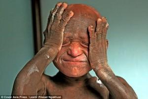 Bimbo statua malattia rende pelle dura come pietra11