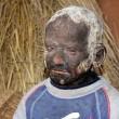 Bimbo statua malattia rende pelle dura come pietra3