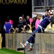 Copa America, Lavezzi si frattura gomito in campo10