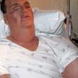 YOUTUBE 10 malattie più terribili: vermi negli occhi, batteri che divorano 2