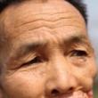 YOUTUBE 10 malattie più terribili: vermi negli occhi, batteri che divorano 3