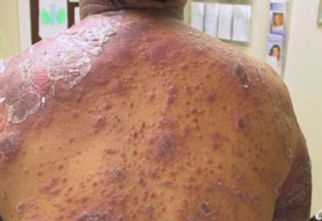 YOUTUBE 10 malattie più terribili: vermi negli occhi, batteri che divorano 7