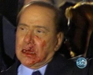 Guarda la versione ingrandita di Berlusconi, tutti i malanni recenti: dal cancro alla prostata all'uveite