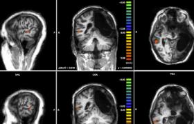 Cervello spento dopo incidente, torna a parlare <br /> La prima volta al mondo: in 7 anni un miracolo