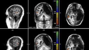 Cervello spento, torna a parlare: la prima volta al mondo