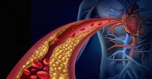 """Colesterolo LDL, ricerca: """"Nessun pericolo per cuore over 60"""""""
