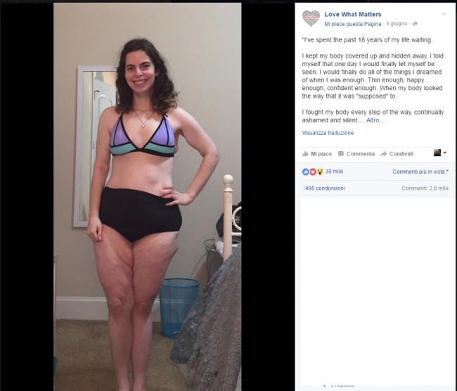 """A 21 anni si mostra in bikini: """"Ho aspettato 18 anni per farlo"""" FOTO"""