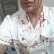 Cardito (Napoli), Luigi Marino accoltella ladro e mette le foto su Fb