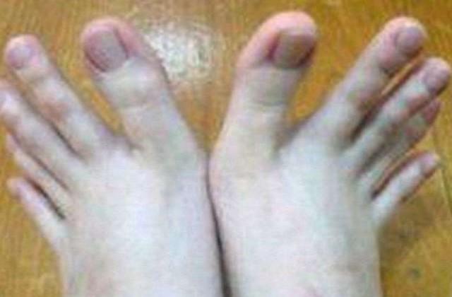 Mani o piedi? La FOTO virale con una risposta a sorpresa