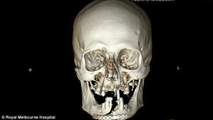 Guarda la versione ingrandita di Si taglia la faccia in 2 con la motosega e… FOTO