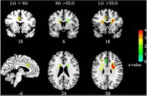 Scanner per cervello: aiuterà i soldati feriti in guerra