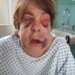 Manchester, invalida massacrata di botte in casa