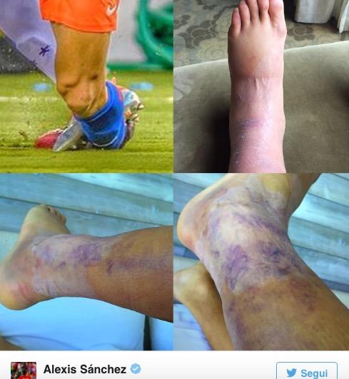 Alexis Sanchez, caviglia viola e gamba malridotta dopo la Copa America