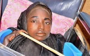 YOUTUBE Rahma, senza gambe né braccia: la ragazza che vive in una bacinella
