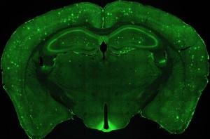 Guarda la versione ingrandita di Alzheimer: Lmtx, il farmaco che rallenta la malattia