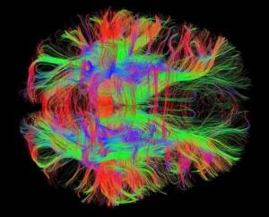 Cervello, lo switch per salvarlo: così un ragazzo ha recuperato la parola