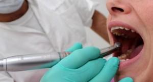 Guarda la versione ingrandita di Udine, scovato finto dentista 80enne: operava con farmaci scaduti