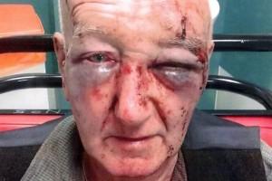 """""""Non fare pipì sul mio muro"""". 70enne viene massacrato FOTO"""