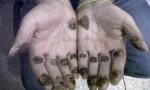 "Colombia: narcotrafficante ""El Loco"" brucia suoi polpastrelli con acido FOTO"