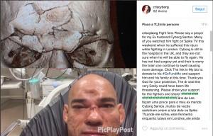 Evangelista Cyborg: fronte spaccata dalla ginocchiata di Michael Venom Page FOTO VIDEO