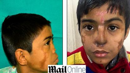 Perde naso, i medici glielo ricostruiscono...sulla fronte FOTO