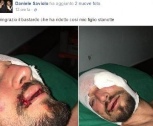 Padova: picchiato da pugile spasimante della ex fidanzata