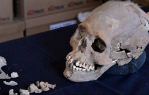 YOUTUBE Teschio deforme: misteriose pietre nascoste tra i denti