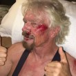 "Richard Branson, incidente in bici: ""Ho pensato che stavo per morire"" FOTO 6"