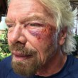 "Richard Branson, incidente in bici: ""Ho pensato che stavo per morire"" FOTO 8"