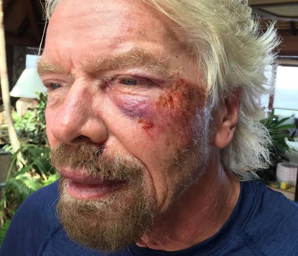 """Ric Branson, incidente in bici: """"Ho pensato che stavo per morire"""" FOTO 8"""
