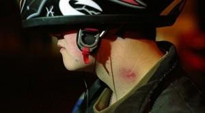 Succhiotto provoca ictus: morto ragazzo di 17 anni