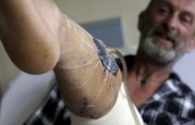 Cane pitbull incrociato mastino napoletano sta sbranando uomo, fermato con un dito nel…
