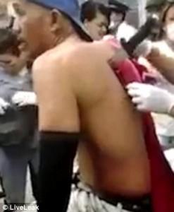 YOUTUBE Colombia: uomo in ospedale con un coltello nella schiena