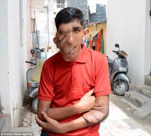 Guarda la versione ingrandita di YOUTUBE Elephant Man, il 16enne con la faccia devastata dal tumore