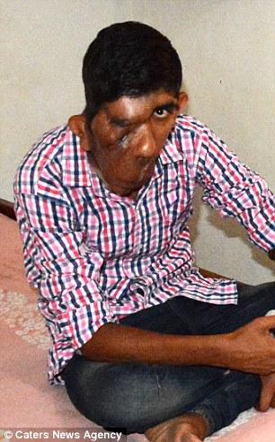 YOUTUBE Elephant Man, il 16enne con la faccia devastata dal tumore05